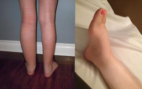 Manual Lymph Drainage Massage